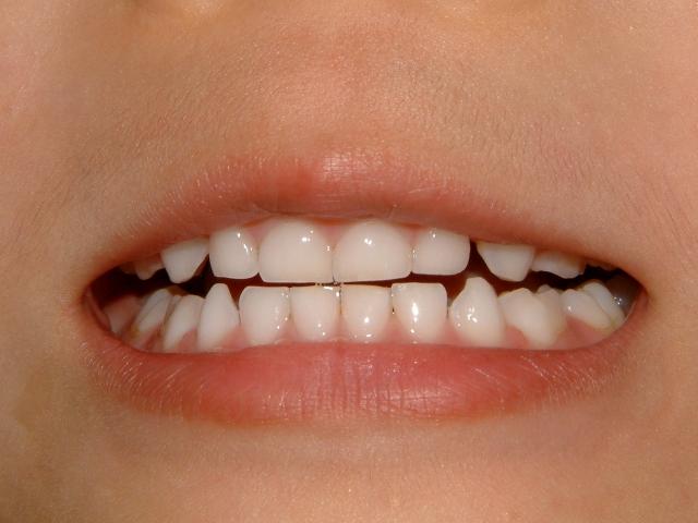 夢占い「歯が欠ける」夢の診断結果