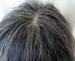 夢占い「白髪になる」夢の診断結果